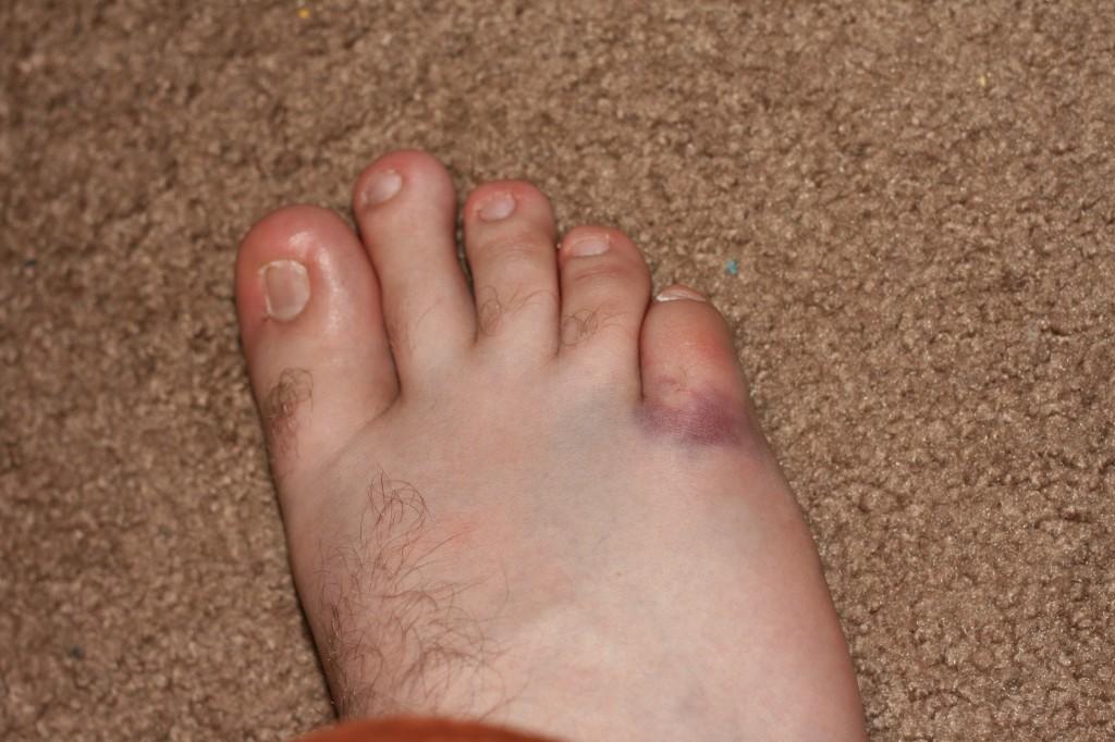 toe broken toe